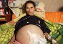 Woman Lives With 2kg Tumour That Makes Her Look Pregnant