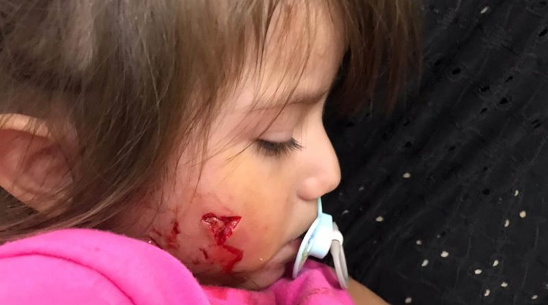 Dog Savages Toddlers Face In Front Of Shocked Mum